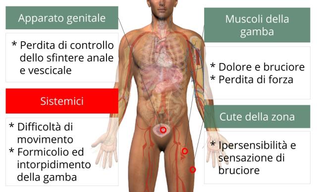 sciatica-sintomi_640x480